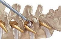 Эндоскопическая хирургия позвоночника